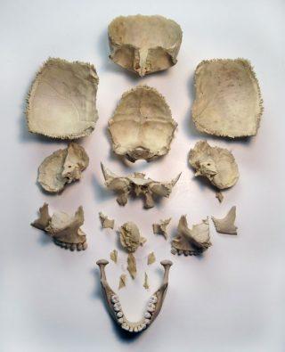 ossa del cranio
