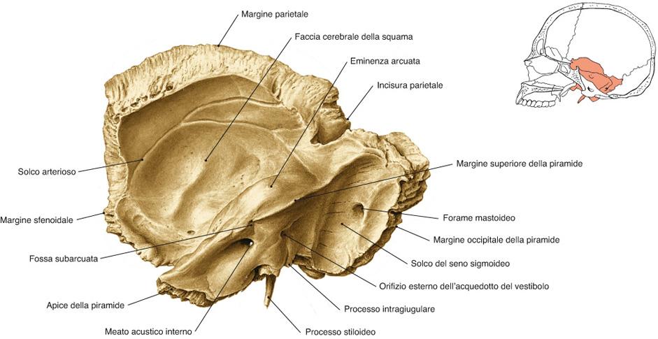 osso temporale visuale mediale
