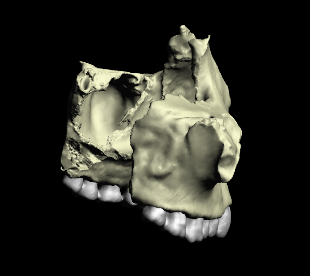 Osso Mascellare 3D Anatomia