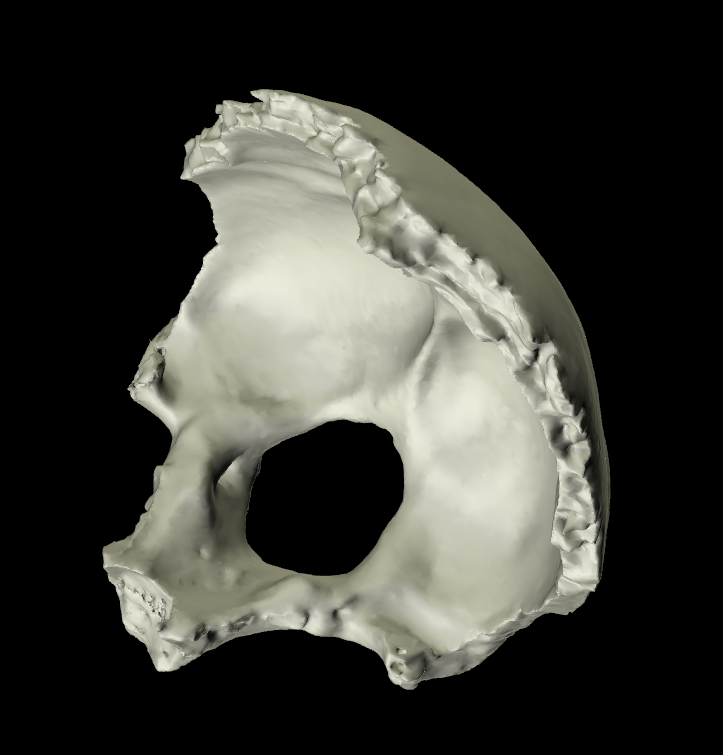 osso occipitale 3d parte basilare