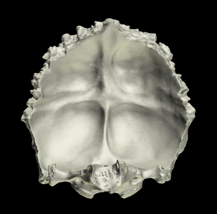 osso occipitale 3d