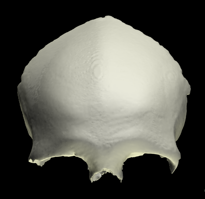 Osso Frontale 3D Anatomia