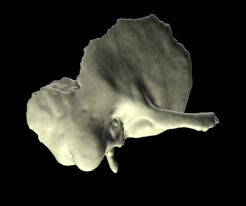 Osso temporale 3d anatomia