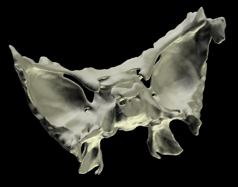 Osso Sfenoide 3D Anatomia
