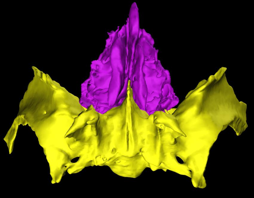 Sfenoide Etmoide 3D Anatomia