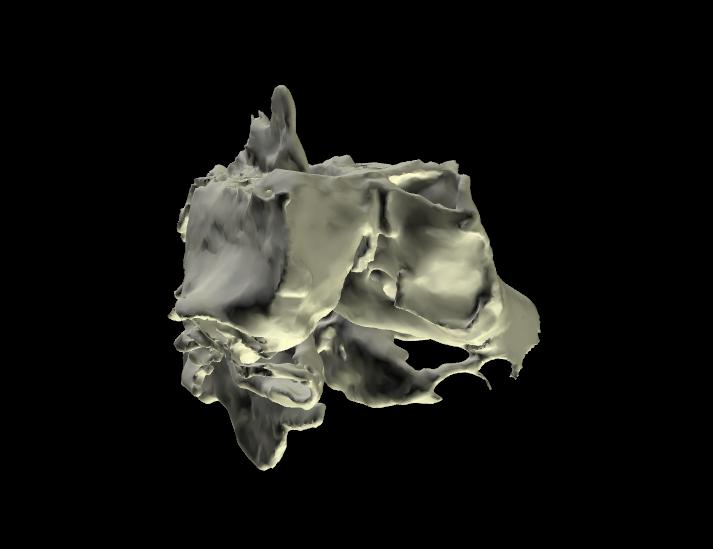 osso etmoide