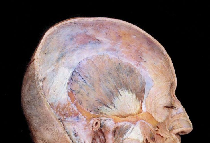 muscolo occipitofrontale
