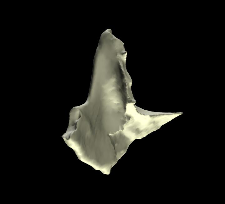 osso zigomatico 3d