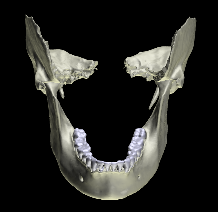mandibola articolata