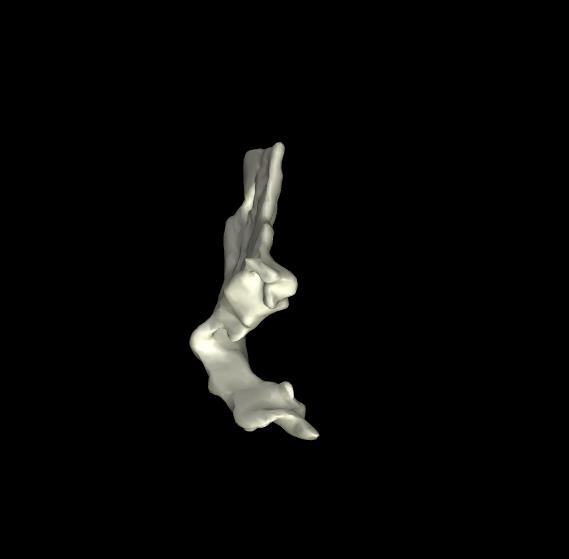 osso lacrimale 3d (5)