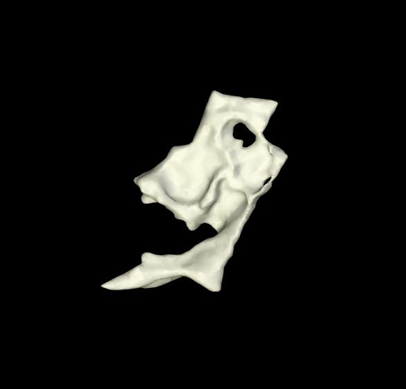 osso lacrimale 3d (8)