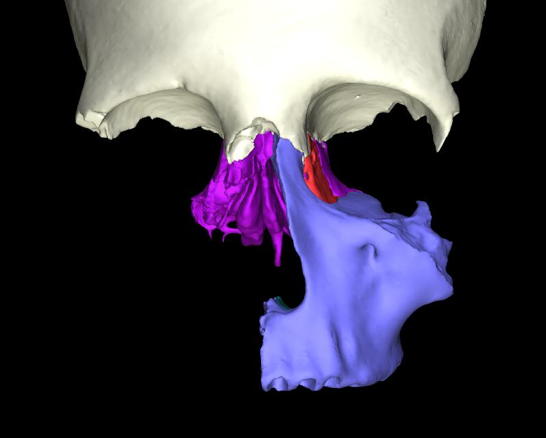 osso lacrimale articolato (1)