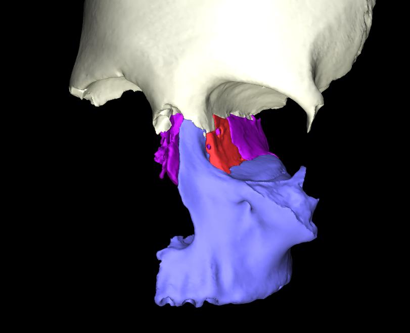 osso lacrimale articolato (2)