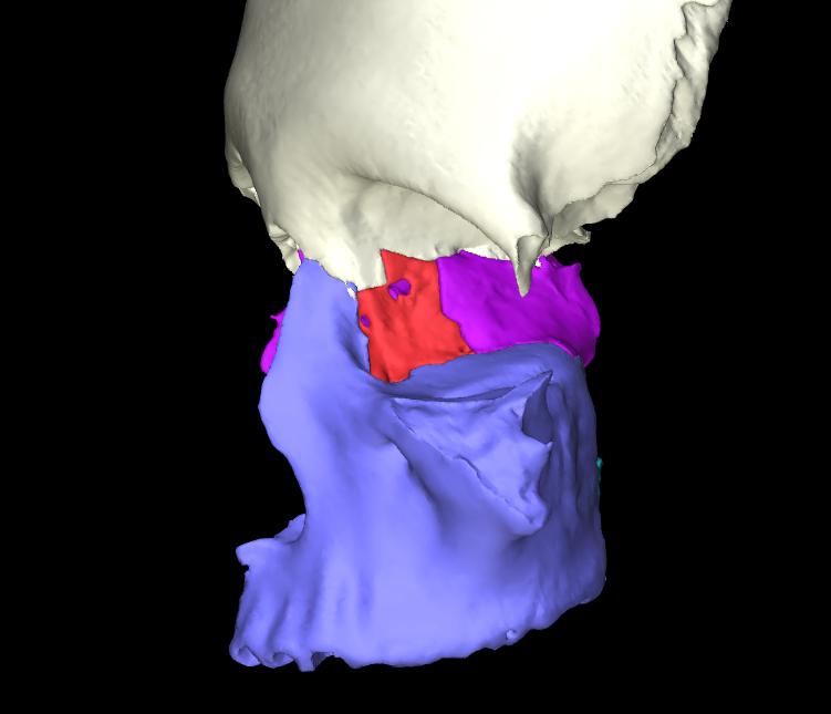 osso lacrimale articolato (3)
