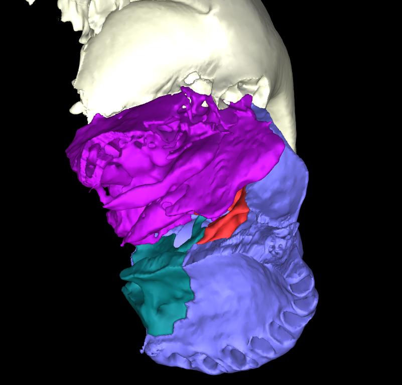 osso lacrimale articolato (6)