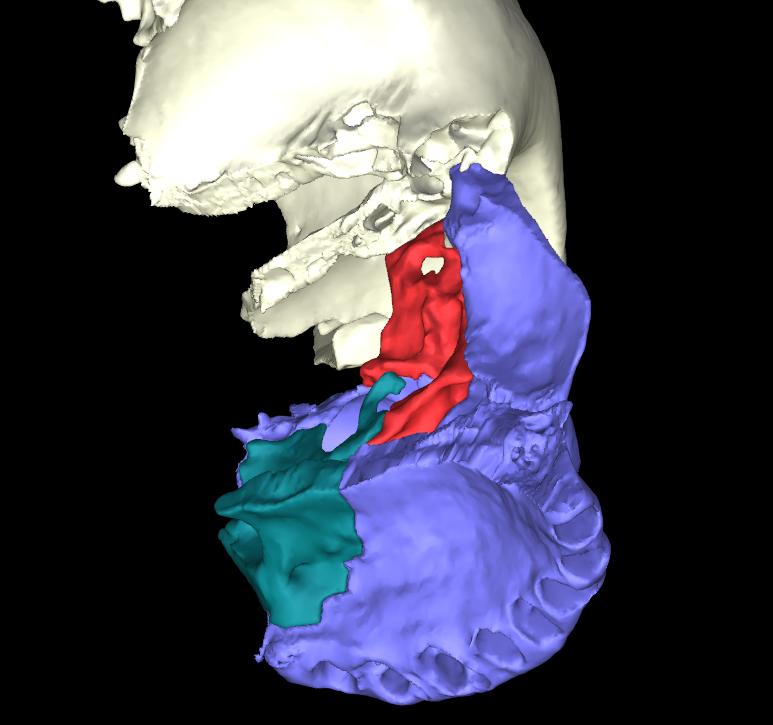 osso lacrimale articolato (7)