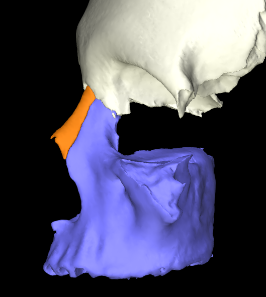 osso nasale 3d articolato (3)