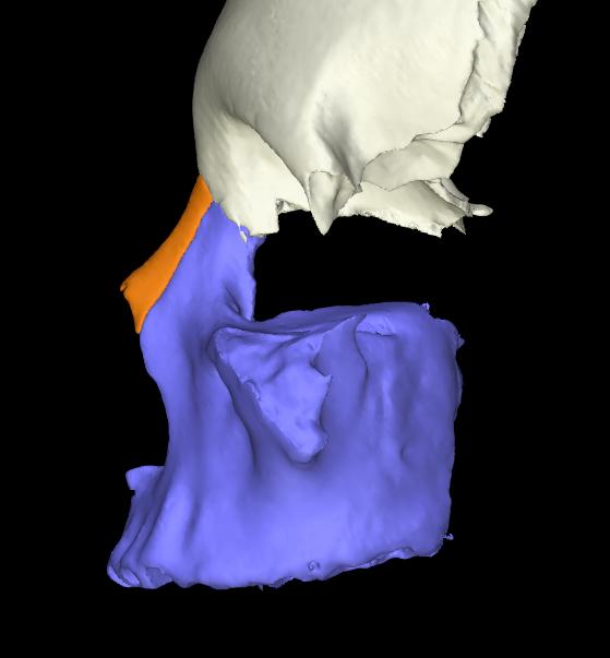 osso nasale 3d articolato (4)