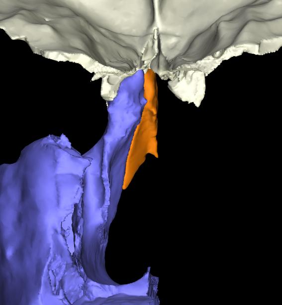 osso nasale 3d articolato (5)
