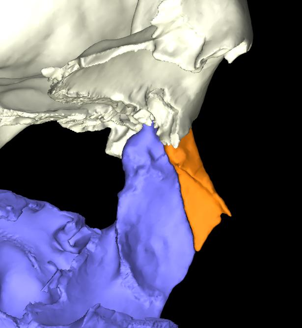 osso nasale 3d articolato (6)