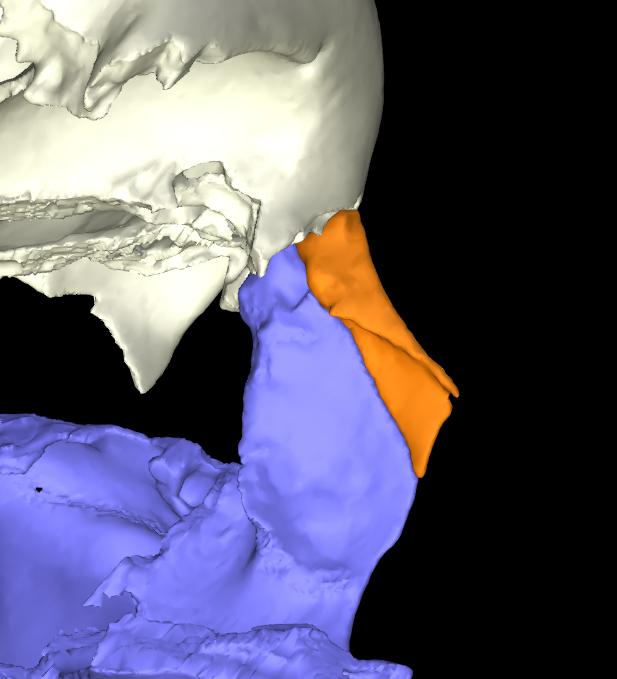 osso nasale 3d articolato (7)