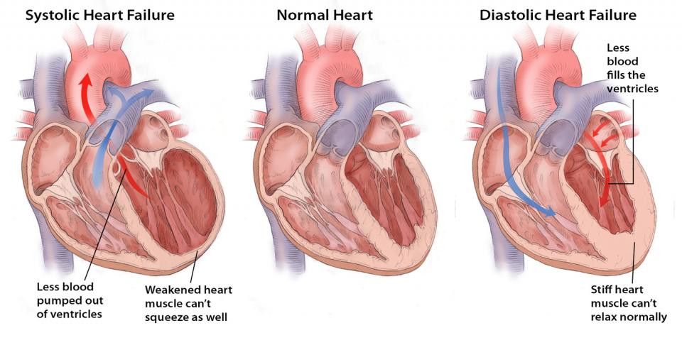 disfunzione diastolica e sistolica